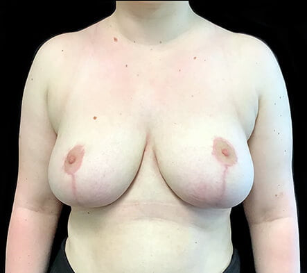 Breast reduction recommendations Brisbane surgeon