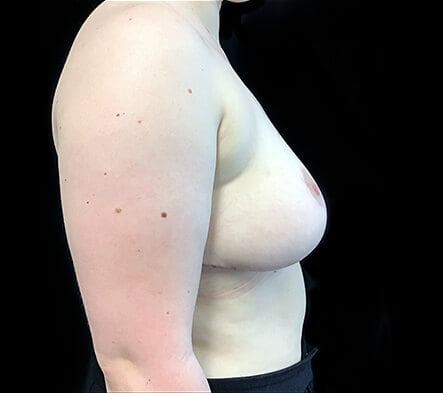 Ipswich breast reduction plastic surgeon