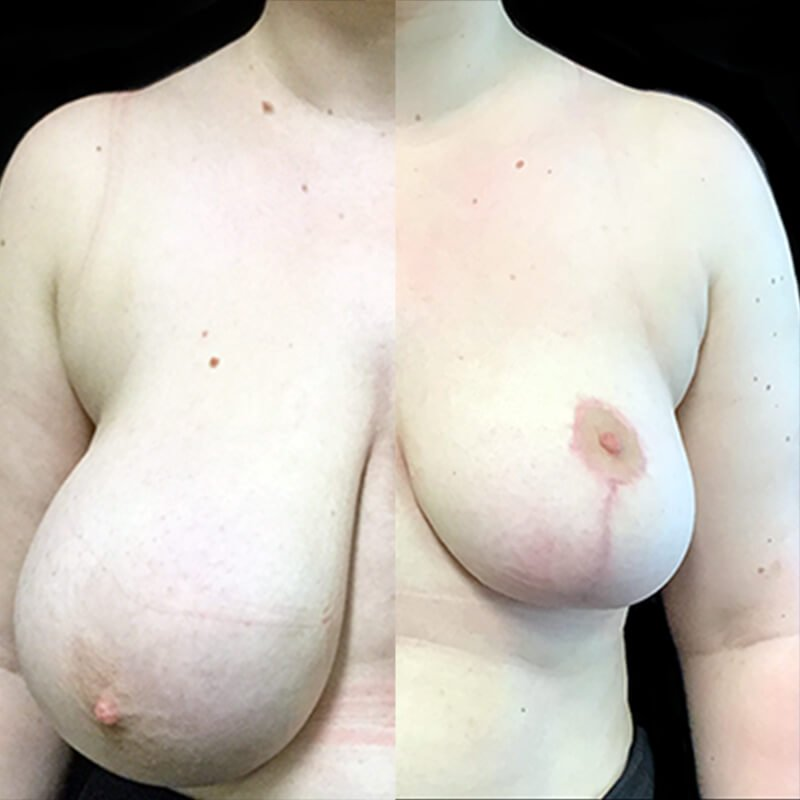 breast reduction surgery with Dr Sharp