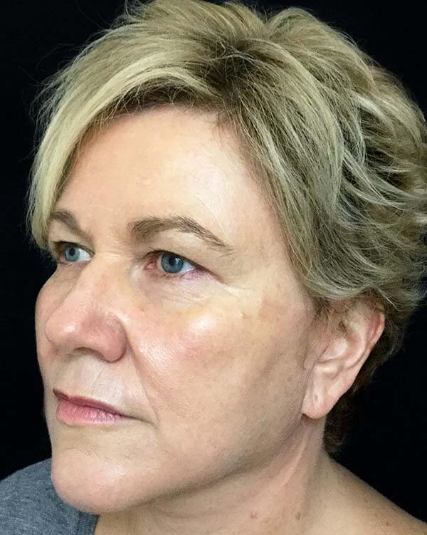 facelift plastic surgeon