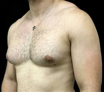 Reputable gynaecomastia plastic surgeon Brisbane