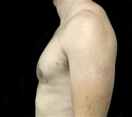 gynaecomastia surgeon Brisbane
