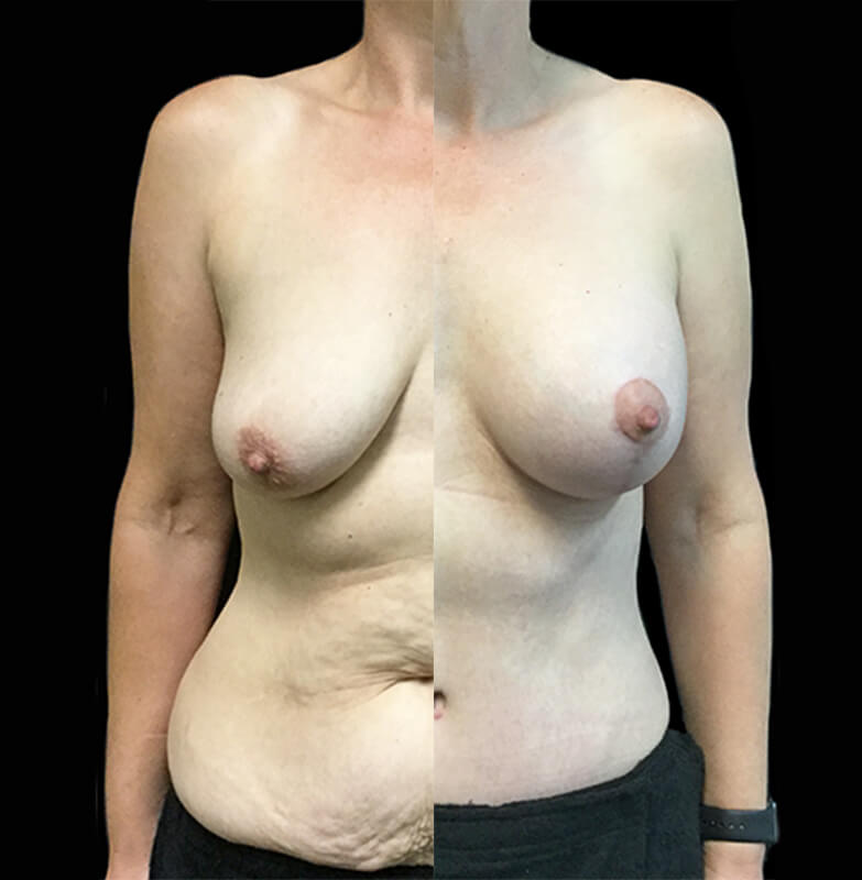Tummy tuck and breast lift with boob job Brisbane and Ipswich