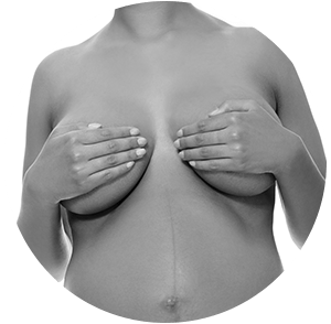 Breast augment + lift