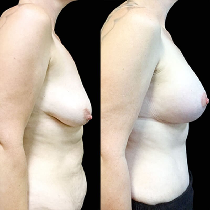 Tummy tuck and breast lift with augmentation Brisbane and Ipswich