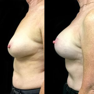 remove and replace breast implants