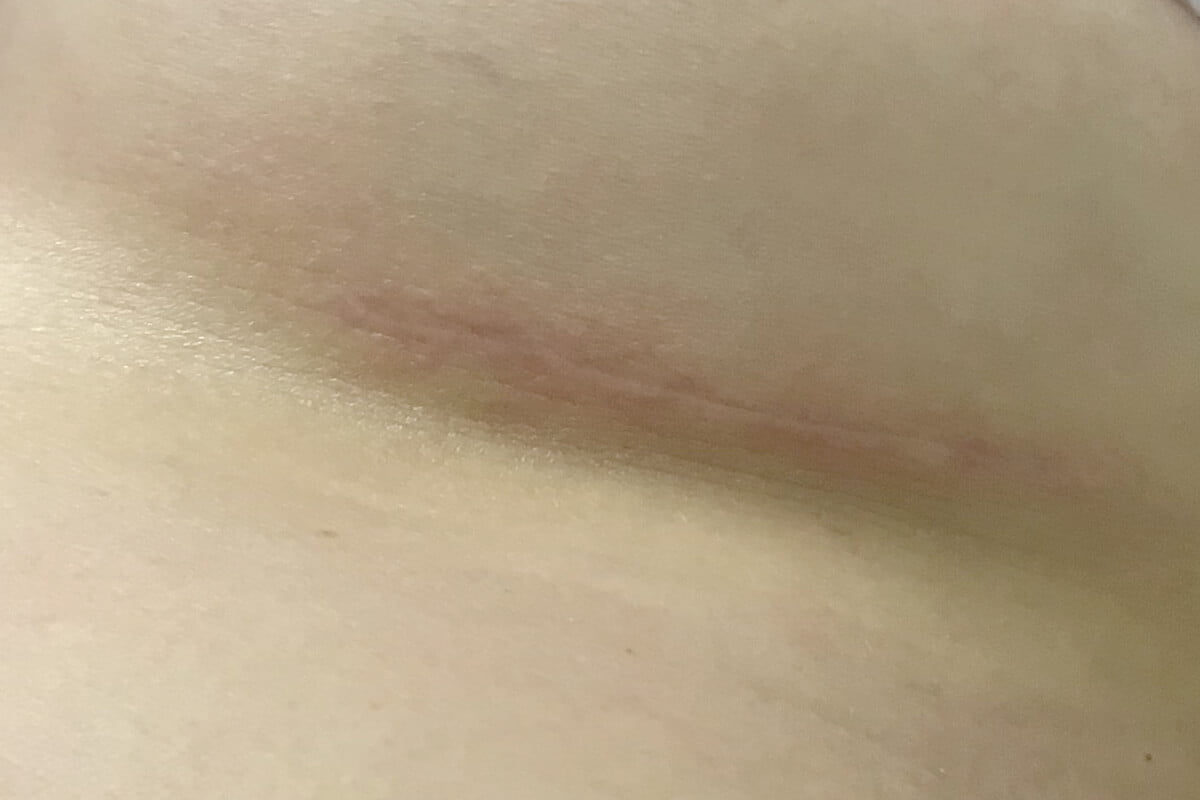 Dr Sharp short breast augmentation scar technique