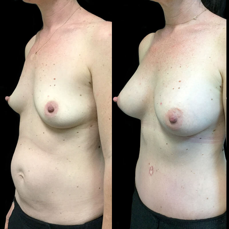 Specialist surgeon for abdominoplasty and breast lift or augmentation after pregnancy