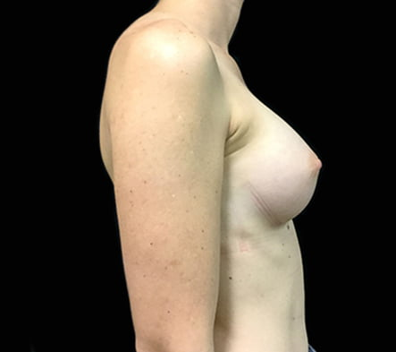 Dr David Sharp breast augmentation results photos reviews