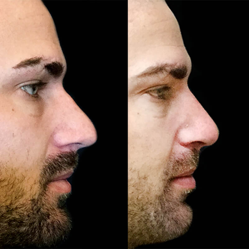 Rhinoplasty surgery Brisbane and Ipswich