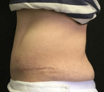 before and after abdominoplasty Dr Sharp