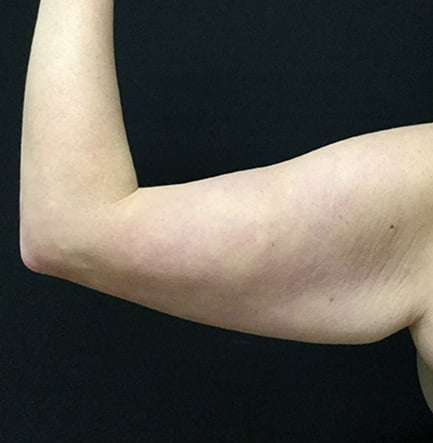 1d13625c10 An arm lift cannot correct weakened muscles of the upper arm; in fact many  individuals who seek surgery are relatively fit individuals who are  bothered by a ...