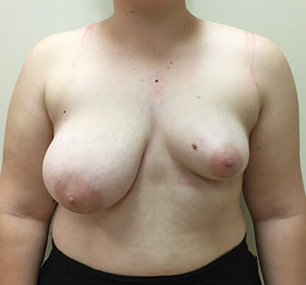 before and after breast asymmetry surgery Dr Sharp