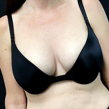 before and after breast augmentation surgery with Dr Sharp