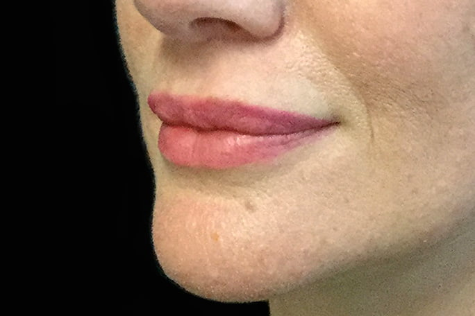lip lift surgery Dr DAvid Sharp