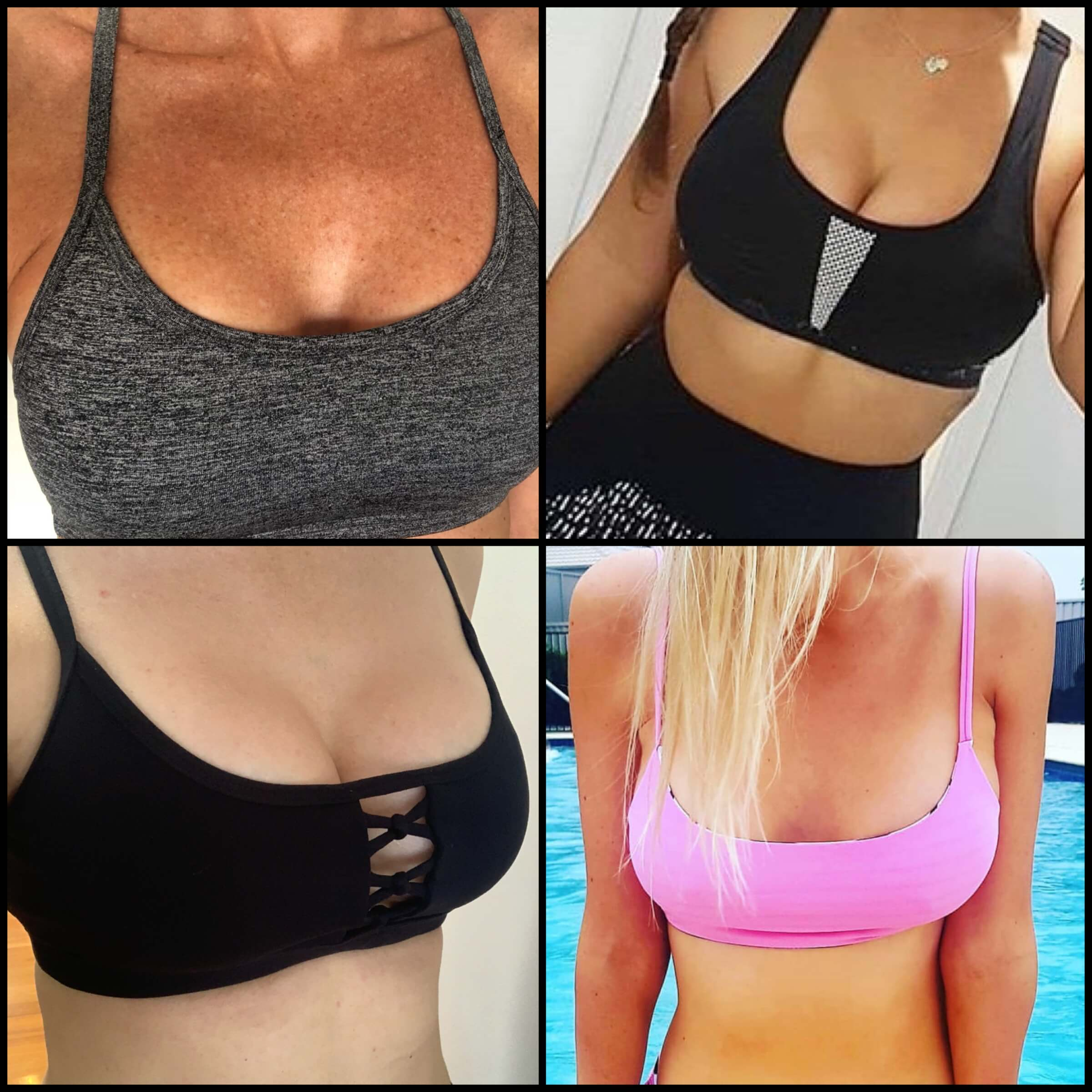breast augmentation safe workout advice