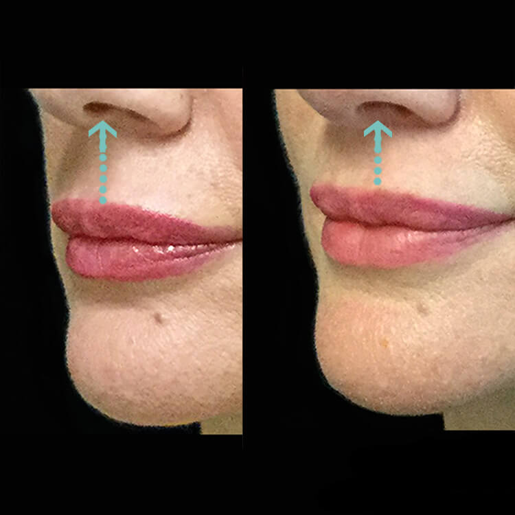 lip lift surgery or lip flick