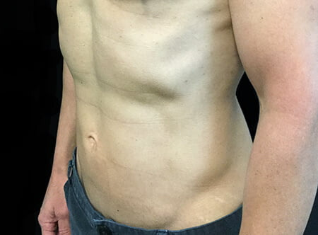 after liposuction results with Dr David Sharp