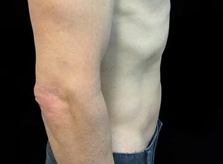 side stomach liposuction Dr David Sharp
