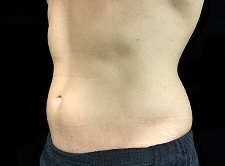 before liposuction with Dr David Sharp