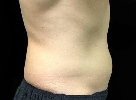 Liposuction Surgery | Dr  David Sharp | Plastic Surgeon
