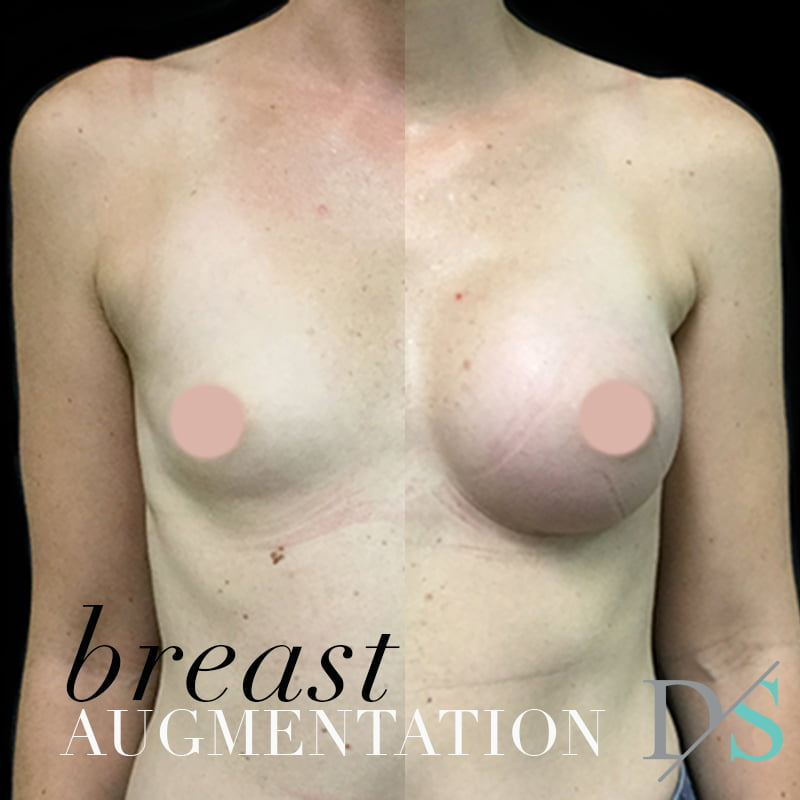 breast augmentation safety Brisbane surgeon