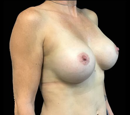 after breast augmentation surgery with Dr David Sharp Brisbane