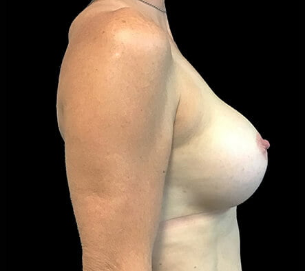 breast augmentation post surgery results