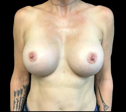 Dr David Sharp breast implants surgeon