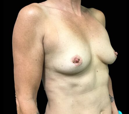 breast augmentation surgeon before results