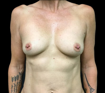 before breast augmentation surgery Brisbane