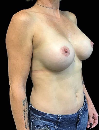 after breast augmentation and mini tummy tuck in Brisbane