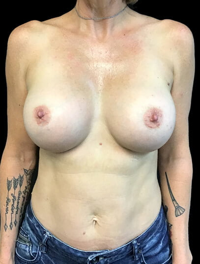 after tummy tuck and breast augmentation surgery
