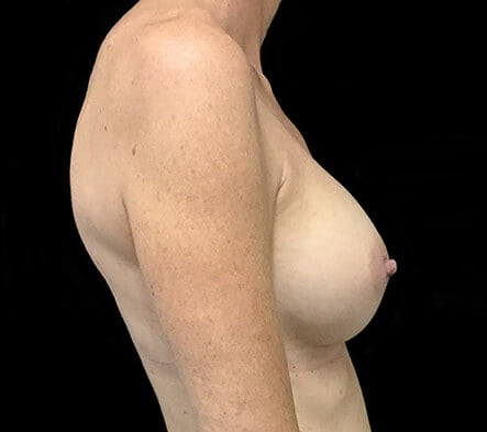 breast augmentation results Dr David Sharp