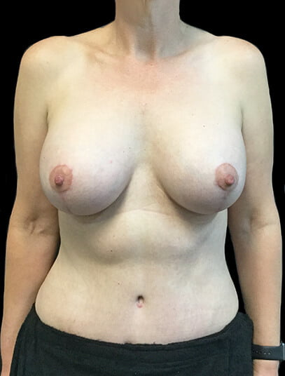 breast augmentation Ipswich