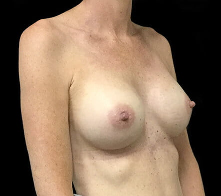 Dr David Sharp breast augmentation results