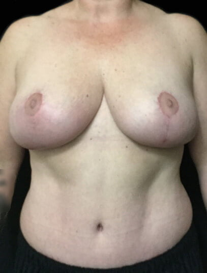 Greenslopes breast reduction and abdominoplasty