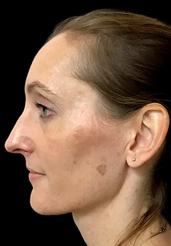 before and after rhinoplasty surgery with Dr Sharp