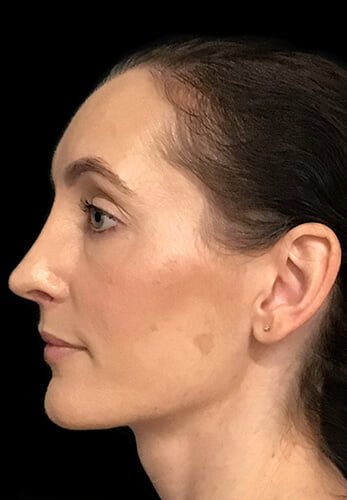 rhinoplasty plastic surgeon Dr David Sharp