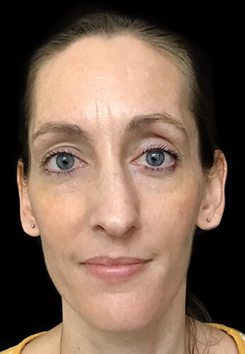 Brisbane rhinoplasty results Dr David Sharp