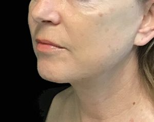 Brisbane facelift plastic surgeon
