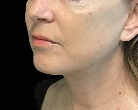 Brisbane facelift plastic surgeon