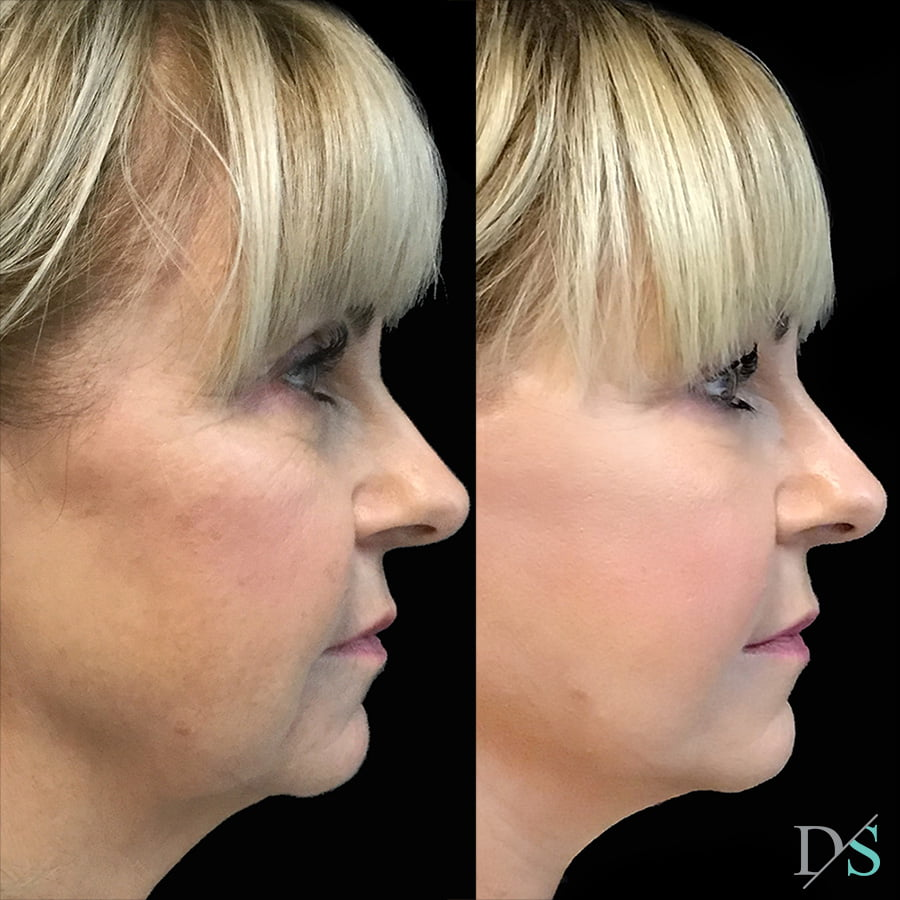 facelift surgeon Brisbane results before and after Dr David Sharp