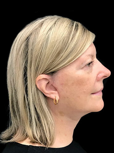 Cost of facelift with lipo in Brisbane and Ipswich