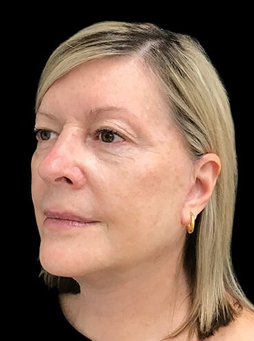 Results of facelift surgery Dr Sharp