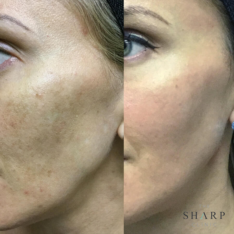 Laser Fraxel clinic South Brisbane