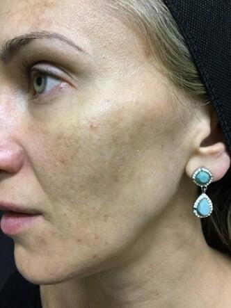 Fraxel laser rejuvenation Clinic Brisbane