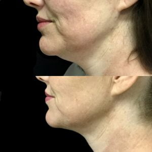 Fat dissolving double chin injections