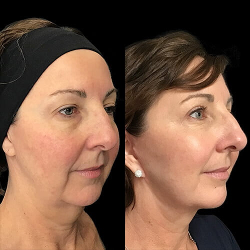 before and after mini facelift with plastic surgeon Dr Sharp