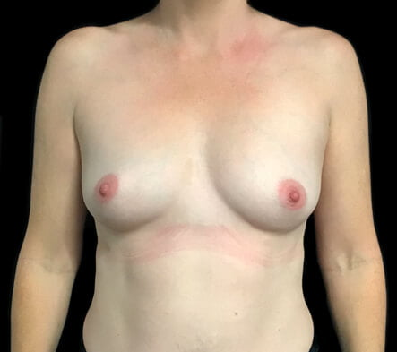 Before breast augmentation photos